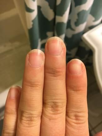 Before Micro-nail