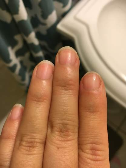 After Micro-nail